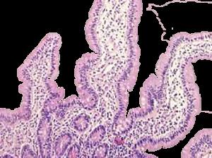 Moleculaire pathologie